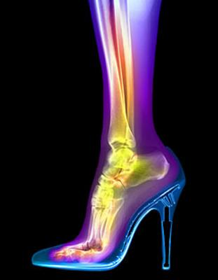 woman-foot-in-stiletto-x-ray.jpg