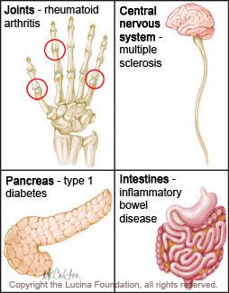 autoimmune-disease-lowres.jpg